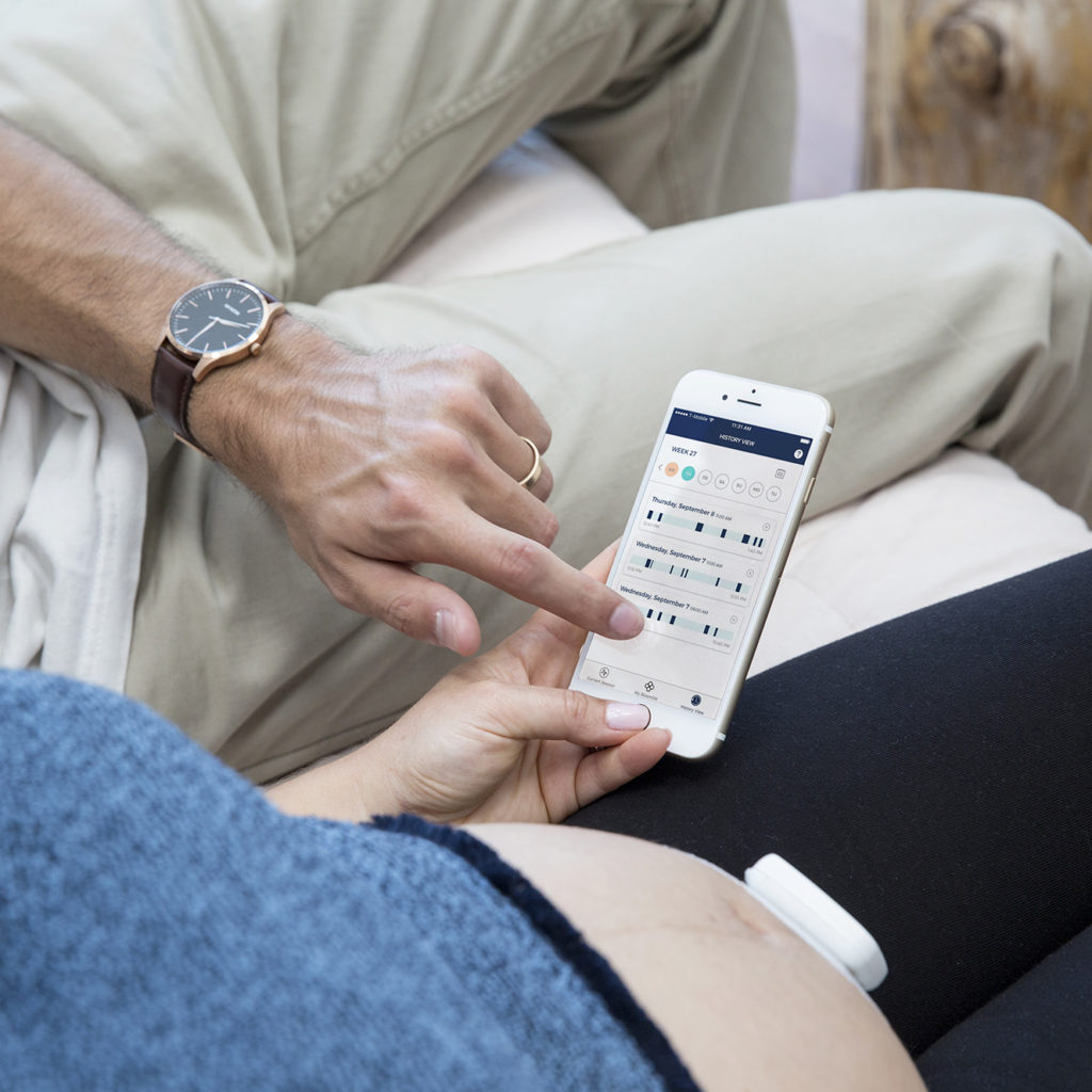 Couple using Bloomlife contraction monitor app