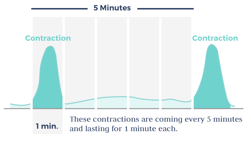Contractions - the basics for timing contractions and how to time contractions for duration and frequency