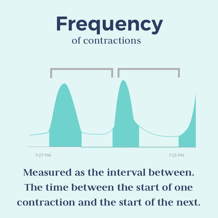 timing contractions - frequency of a contractions