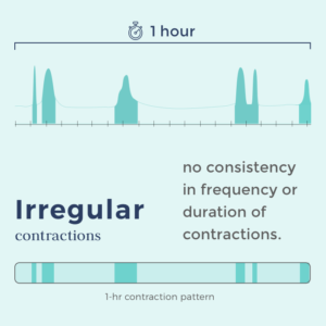 timing contractions -contraction pattern showing irregular contractions