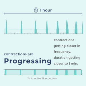 timing contractions -contraction pattern showing contractions are progressing