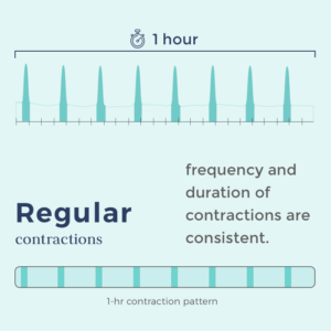 timing contractions -contraction pattern showing regular contractions
